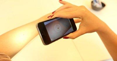 SkinVision - tehnologie anti-cancer dezvoltată la Cluj. Planurile după o finanțare de 3,4 milioane de dolari